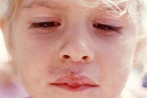 Вирус герпеса 4-го типа на лице у ребенка