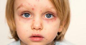 Ребенок с симптомами вируса герпеса
