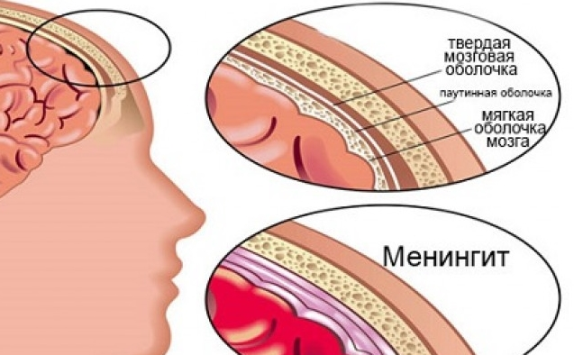 Где располагается воспаление мягкой оболочки мозга