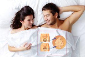 Мужчина и женщина лежат в постели.