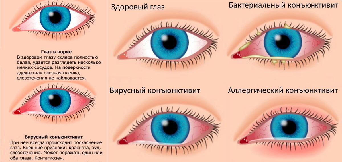 Разные формы заболевания глаза