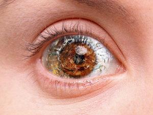Картинка больного глаза
