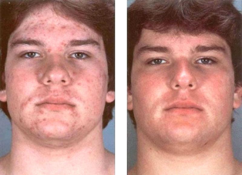 Результат до и после лечения