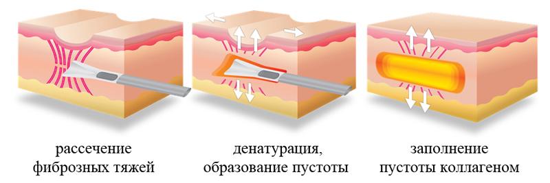 Субцизия от шрамов