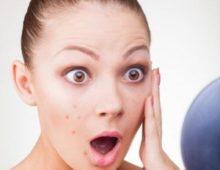 Шрамы после ветрянки: как убрать рубцы и другие следы после перенесенного заболевания