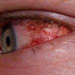 Острая форма воспаления на глаз