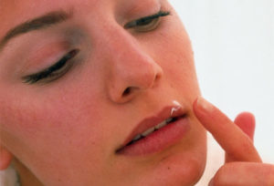 Разница между герпесом и простудой на губах thumbnail