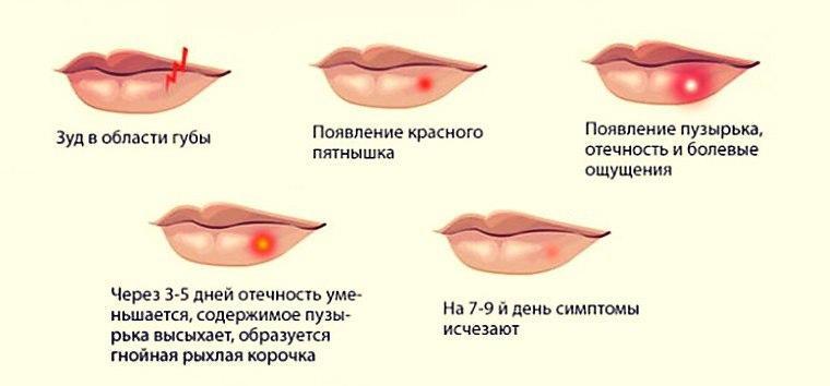 Развитие губного герпеса