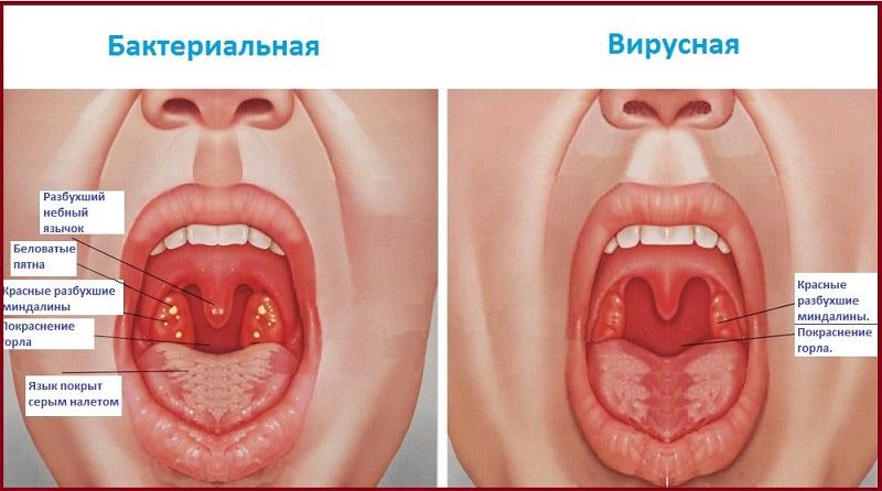 Отличия бактериальной и вирусной инфекций