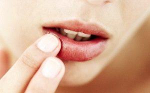 Воспаление на губе