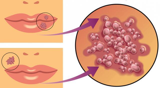 Пузырьки на губах