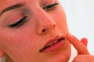 Нанесение зубной пасты на воспаление