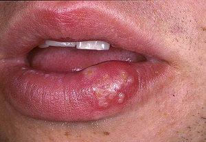 Пузырьки на губе