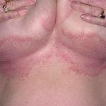 Высыпания под грудью у женщины
