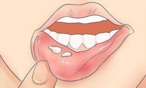 Сыпь на поверхности губ
