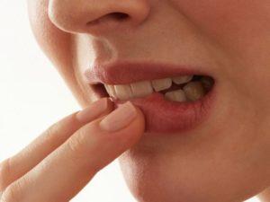 Зажимание губы