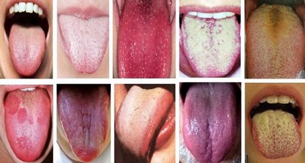 Разные цвета языка