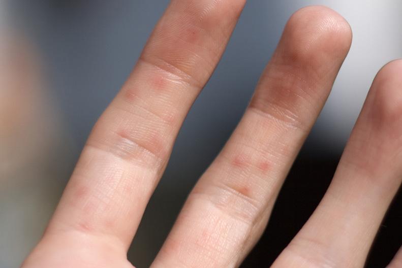 На пальцах руки