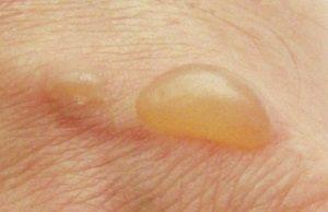 Пузырек на коже