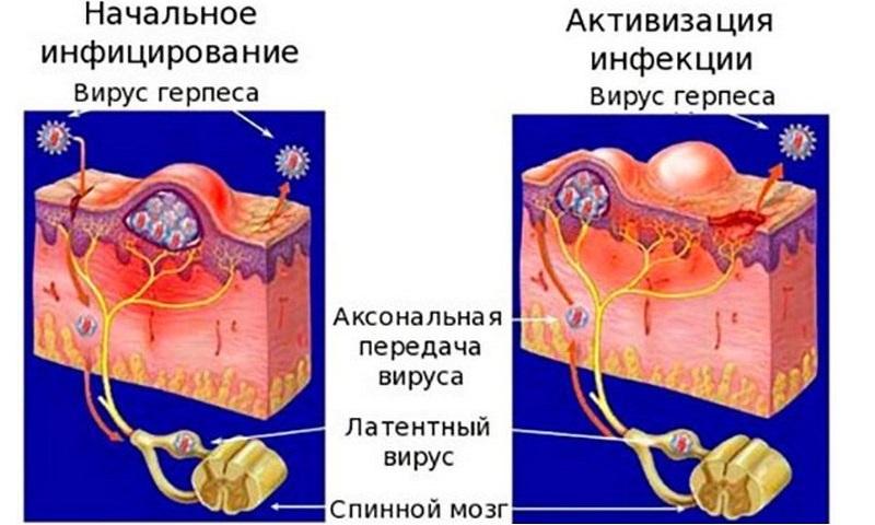 Развитие инфекции