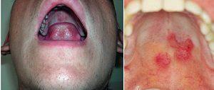 Сифилис во рту