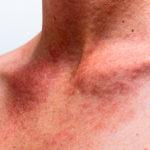 Сыпь при мононуклеозе у детей 2