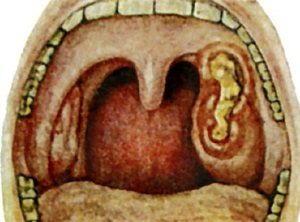 Язвенно-некротическая ангина